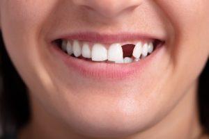 علت سیاه شدن دندان
