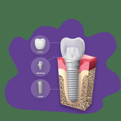 اجزا و مراحل کاشت دندان ایمپلنت
