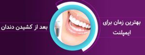 چه مدت بعد از کشیدن دندان می توان ایمپلنت کرد