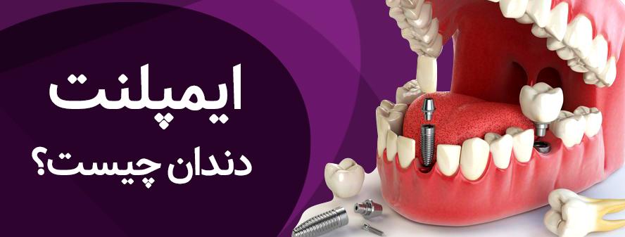 کاشت ایمپلنت دندان چیست