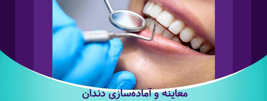 معاینه و آماده سازی دندان برای لمینت