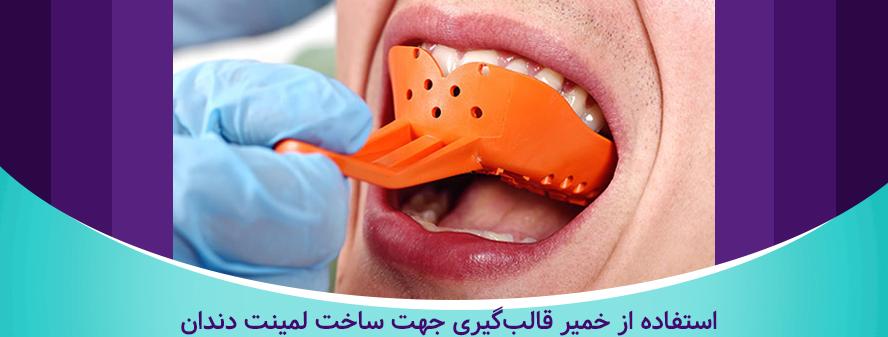 قالب گیری دندان ها در مراحل لمینت دندان