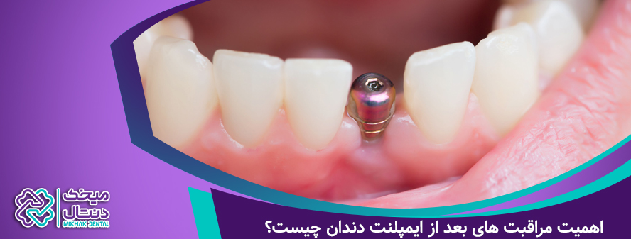 اهمیت مراقبت بعد از ایمپلنت دندان