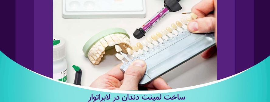 مراحل لمینت دندان - ساخت لمینت در لابراتوار