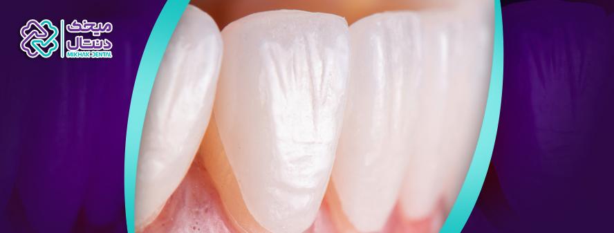 مراحل لمینت دندان