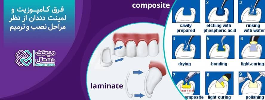 فرق کامپوزیت و لمینت دندان از نظر مراحل نصب و ترمیم