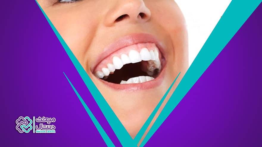 لبخند لثه ای و روش های درمان