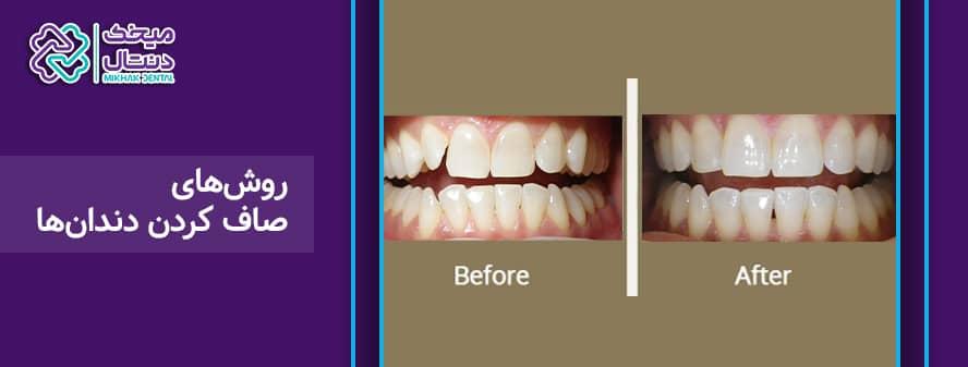 روش های مرتب کردن دندان ها