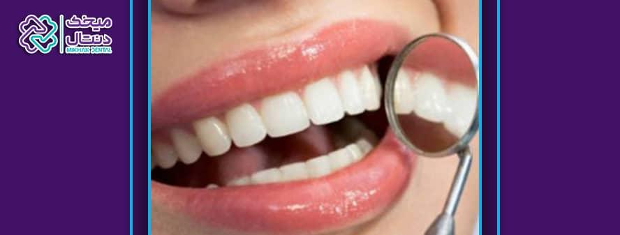 مرتب کردن دندان بدون ارتودنسی